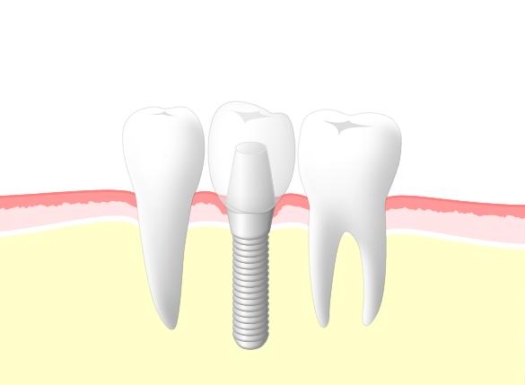 きれいな歯でしっかり噛めるようになりたい方は、インプラントがお勧め