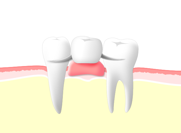 他の歯を削らず保険診療をご希望される方には、入れ歯がお勧め